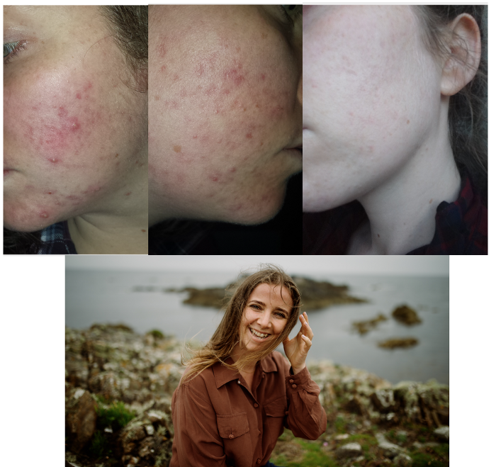 Healing acne and Crohn's disease on a whole food plant-based diet
